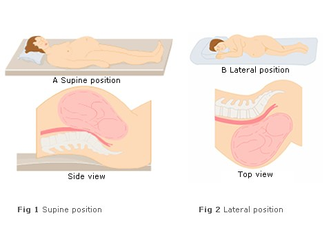 lateral-versus-supine