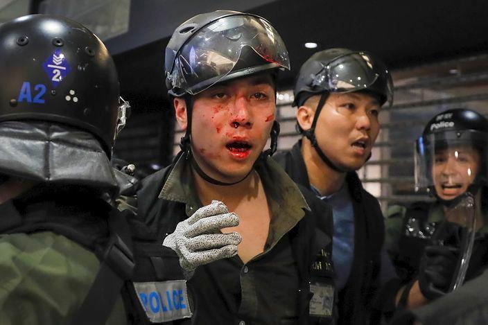 圖:警員被打到血流披面。AP圖片