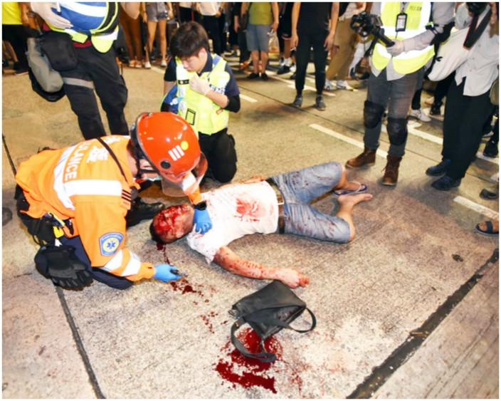 圖:中年漢被打至血流披面