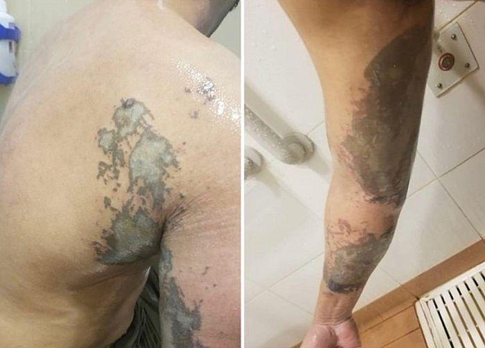 警員的背和手臂被腐蝕性液體灼傷,需要大面積植皮。