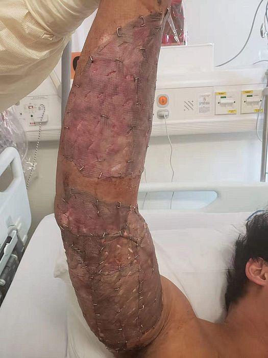 警員手臂植皮的照片,轉發到社交媒體之上。