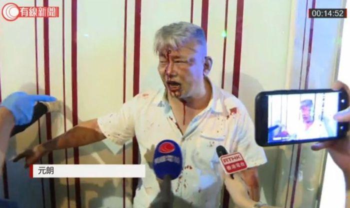 元朗阿伯被打至血流披面。(有線影片截圖)