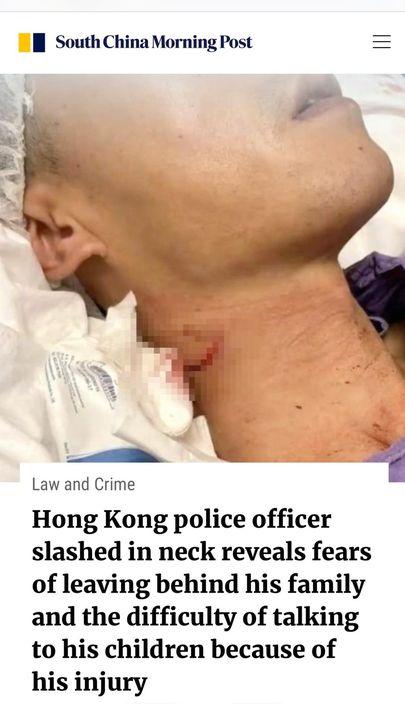 《南華早報》訪問了受傷沙展。