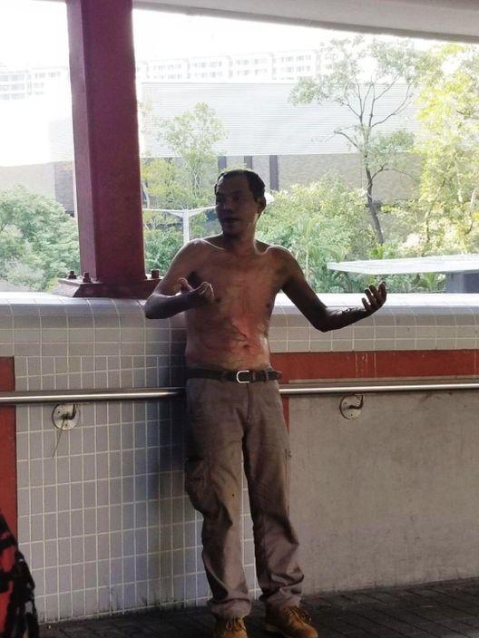 綠衣男子三級燒傷,上半身大面積甩皮,送院搶救後情況危殆。