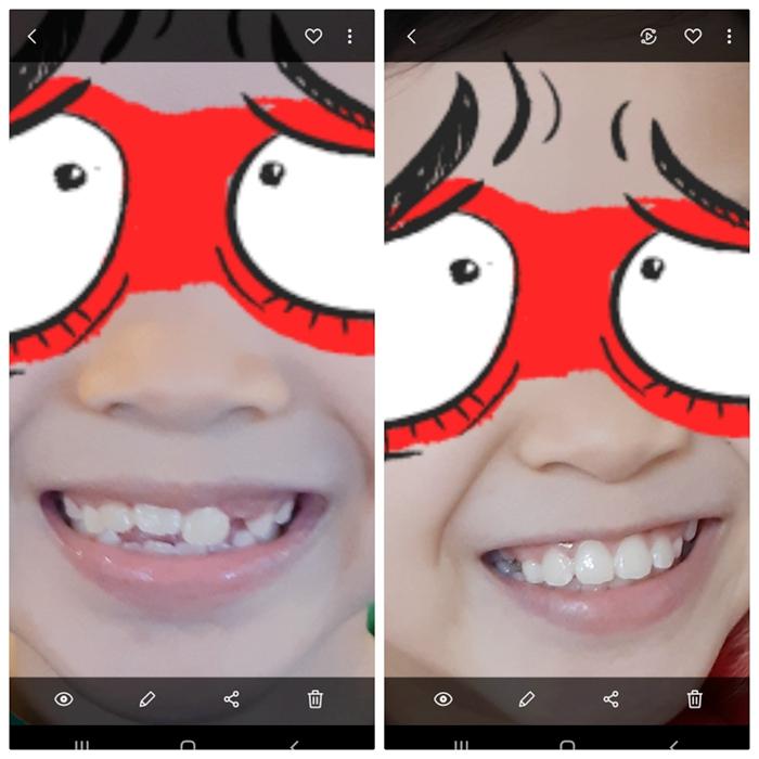真女的牙由凹凸不平(左),到今天變到非常整齊(右)。