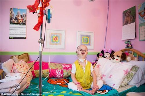 患有罕病的少女Michelle Kish,对镜中的自己充满自信。
