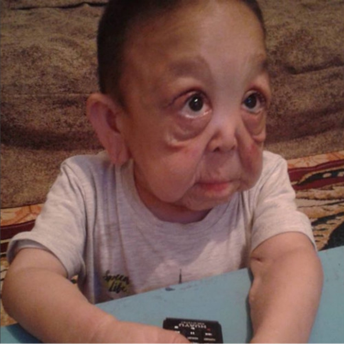 Rare Disease Causes Joint Atrophy In 6 Years Old Child Causing Him To Look Like An 80 Year Old Funfeed Bastillepost