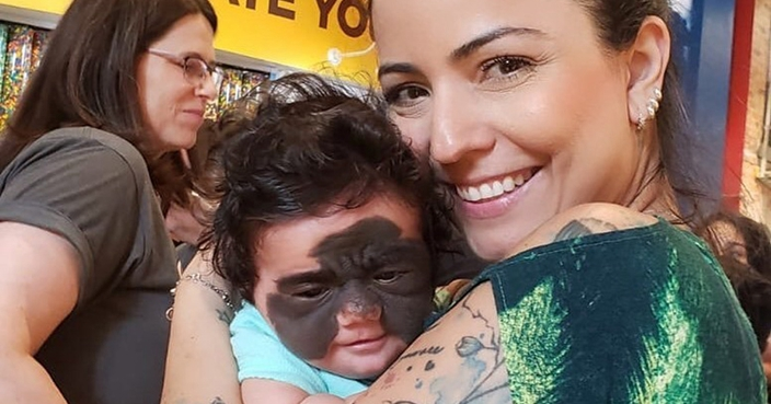Back Of Video Baby Mum Unique Black 'batman' Hits With Birthmark