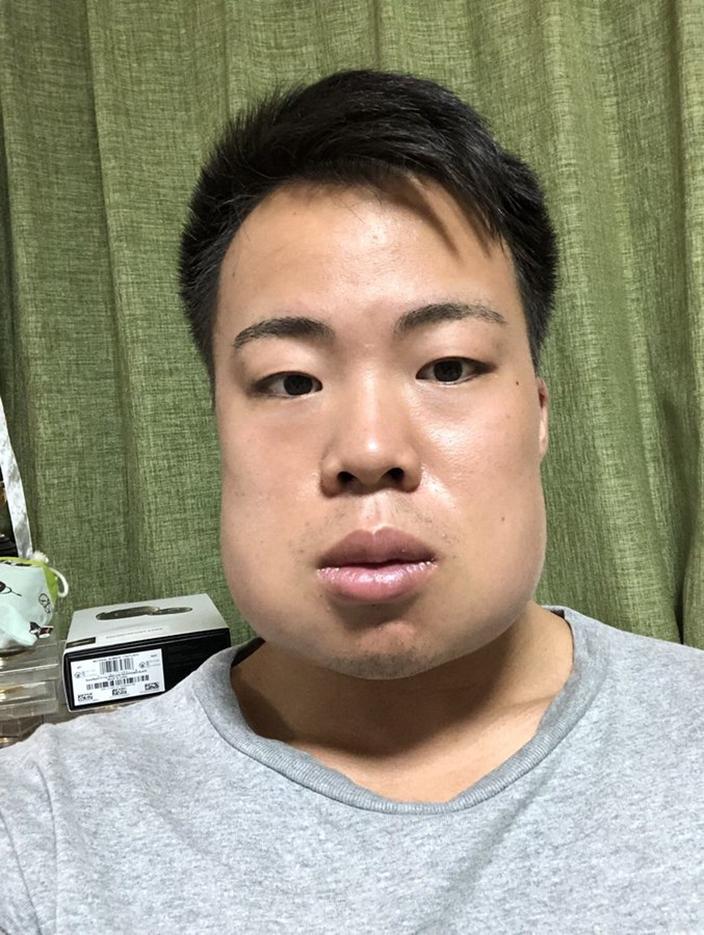 腫腫又痛痛der…日本猛男貪快「一次拔4智齒」結果腫成豬頭 網爆笑:敬你是條硬漢