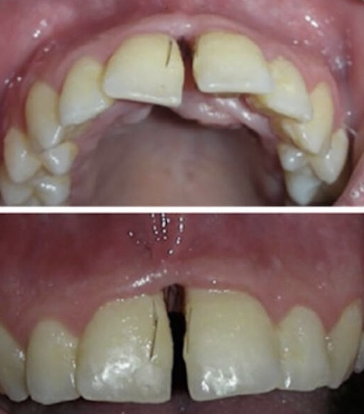 不蘇湖!義大利女罹患不能治癒的怪病 「牙縫」狂長毛 一停藥病情一發不可收拾