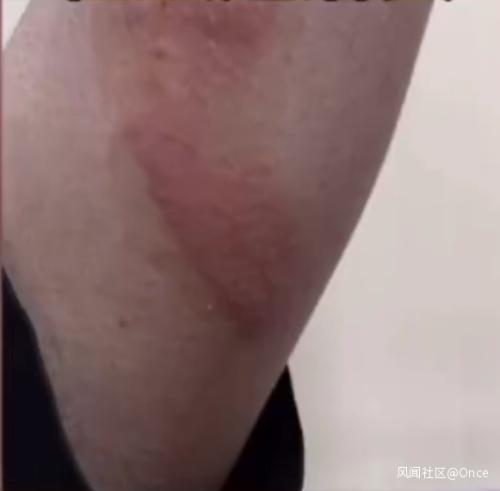 三星手機突然爆炸,鄭州一男子頭髮和眉毛被燒焦