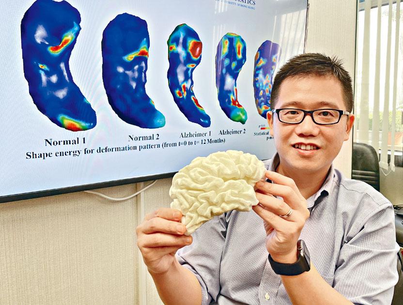 中大研CQC助诊断阿兹海默症