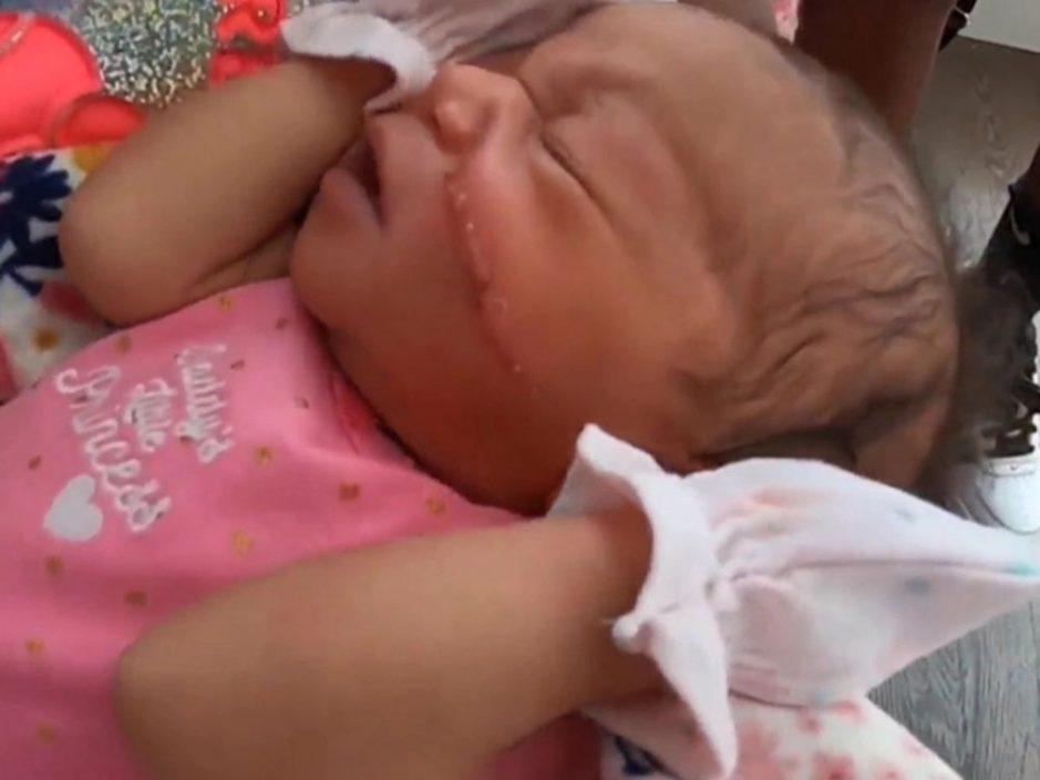 剖腹产婴脸上留刀痕要缝13针 医院:离胎盘太近了