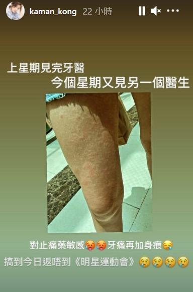 【赶客feel】晒风癞红猪腿好吓人 江嘉敏药物敏感搞到周身痕