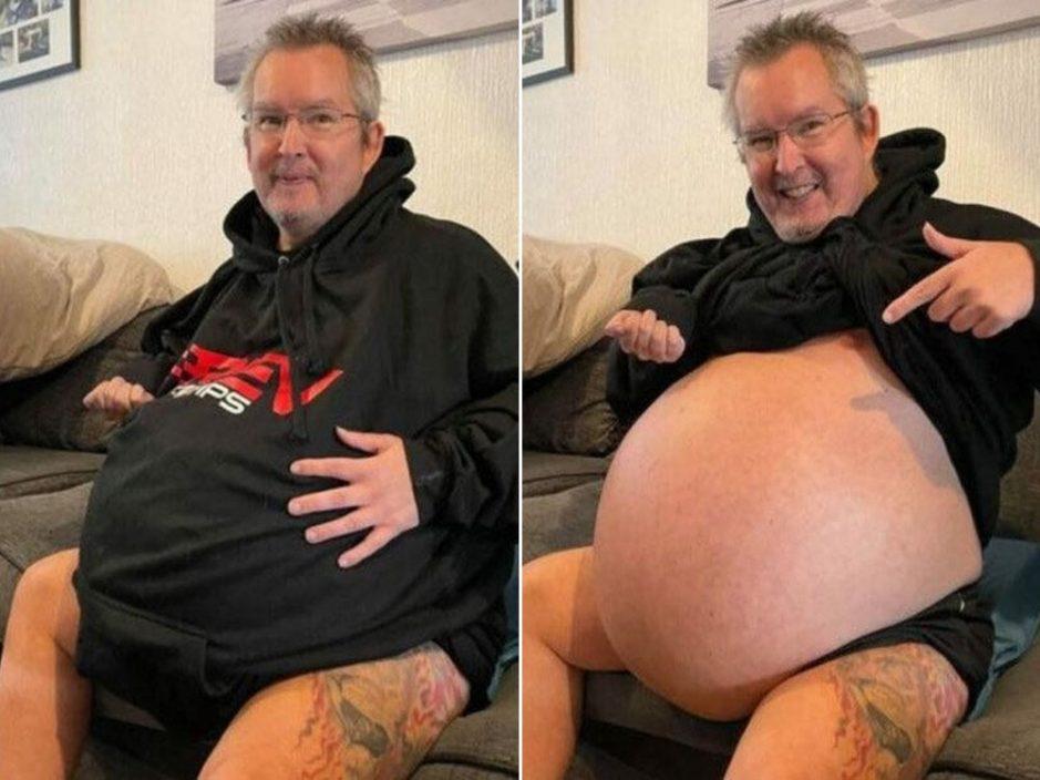54岁男罹患怪病肚大如孕妇 体内40公斤累赘恐压碎心肺