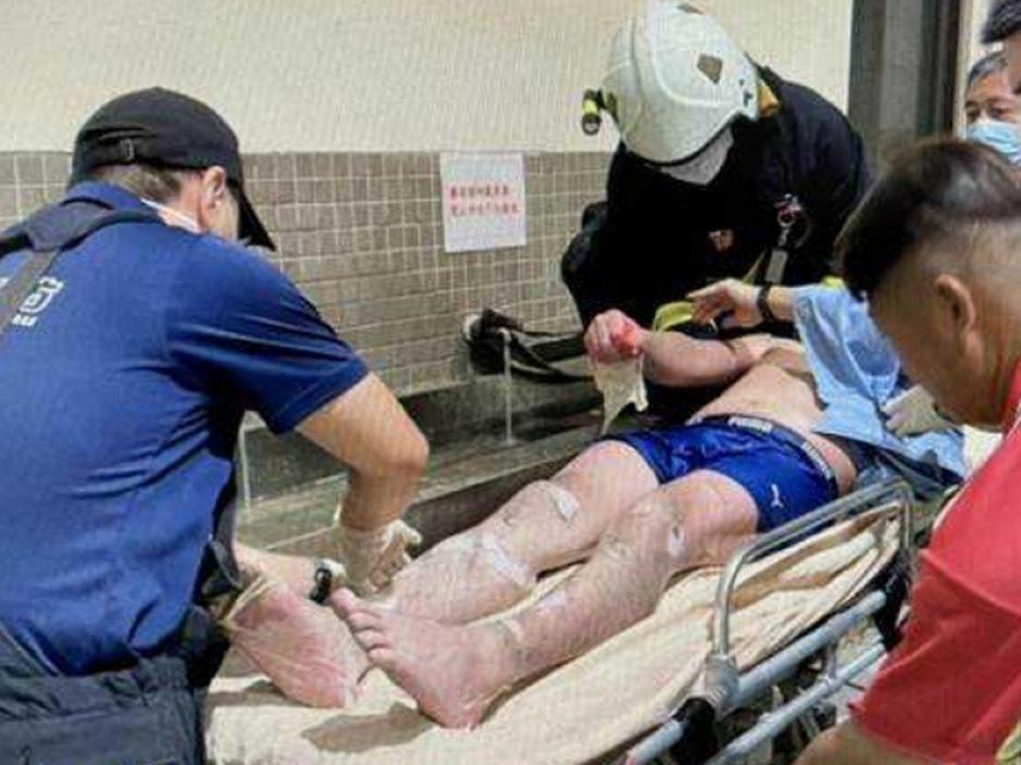 台工人跌入进摄氏80度皂化池 全身大面积烫伤送院